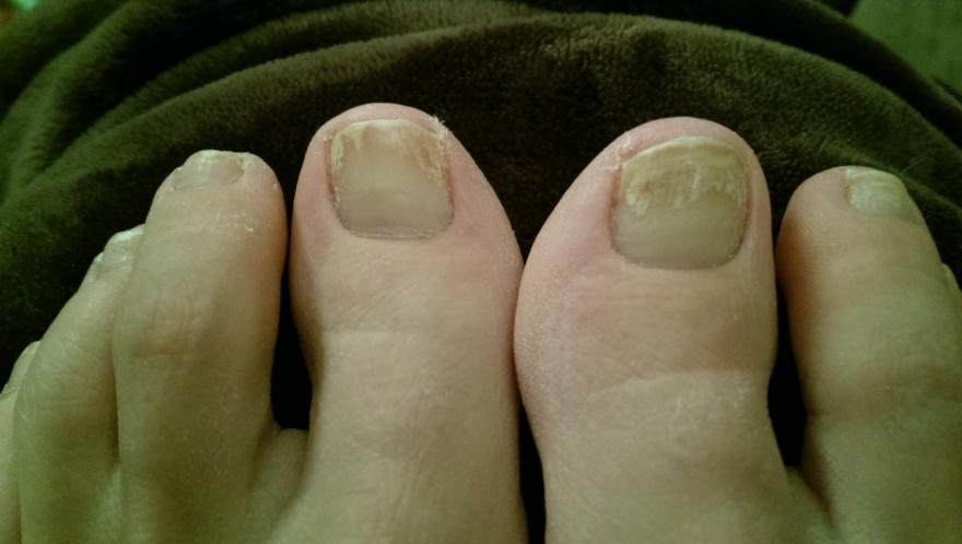 eTalk : diagnosis? toenail problem after chronic nail polish use